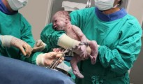 Delaying umbilical cord clamping